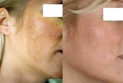 Химический пилинг лица - фото до и после