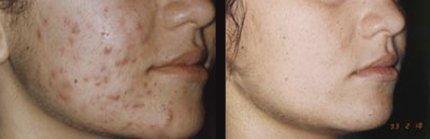 Салициловый пилинг - фото до и после