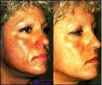 Лицо после пилинга Джесснера - фото до и после