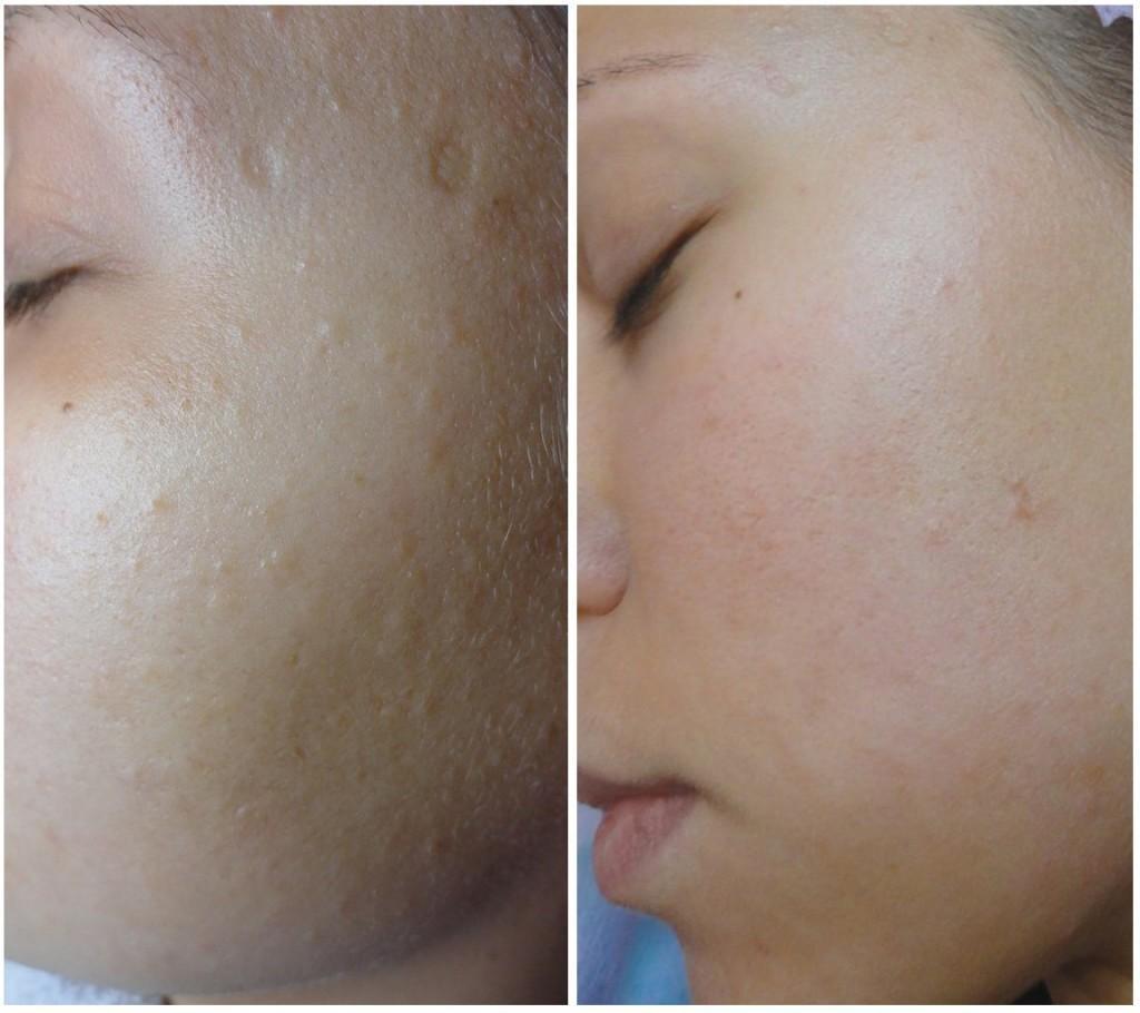 Лицо после ультразвукового пилинга - фото до и после