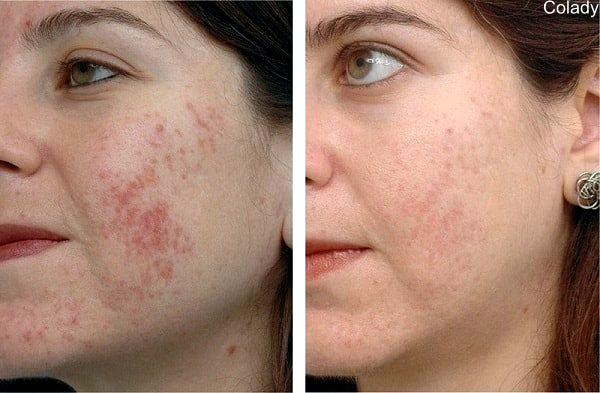 Пилинг лица бадягой - фото до и после: эффект и результат