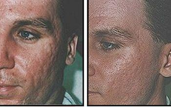 Фото до и после молочного пилинга