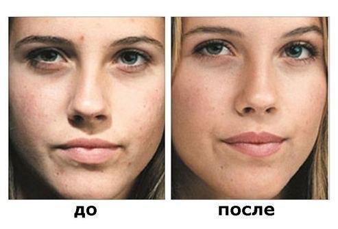 Фото до и после пилинга бодягой