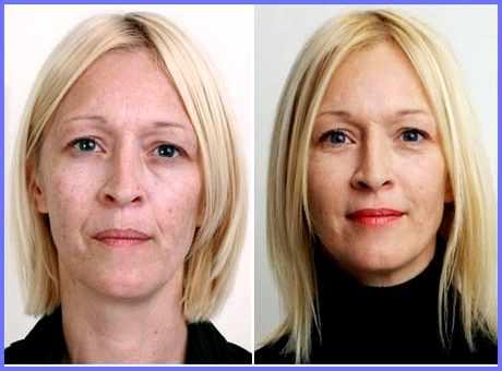 Лицо после алмазного пилинга - фото до и после