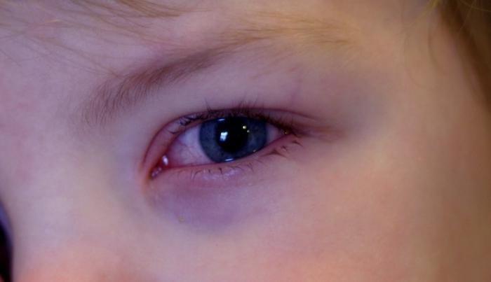 Красные глаза у ребенка - причины