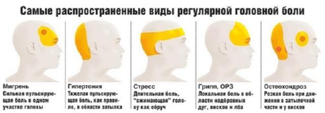 Причины и лечение головной боли