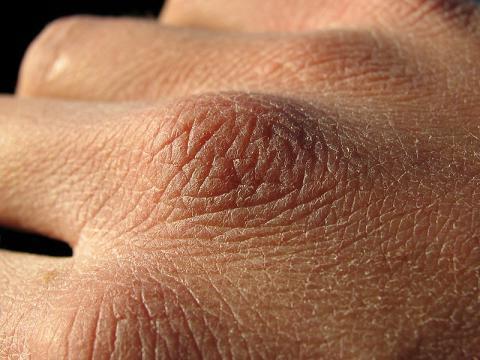 Как выглядят цыпки на руках - фото