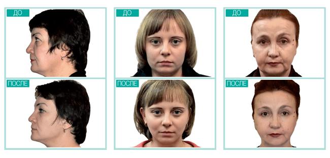 Ревитоника для лица и шеи - результаты