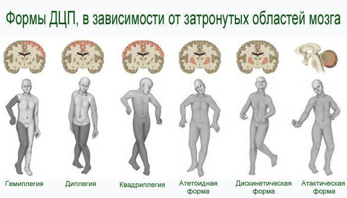 Формы детского церебрального паралича и причины ДЦП