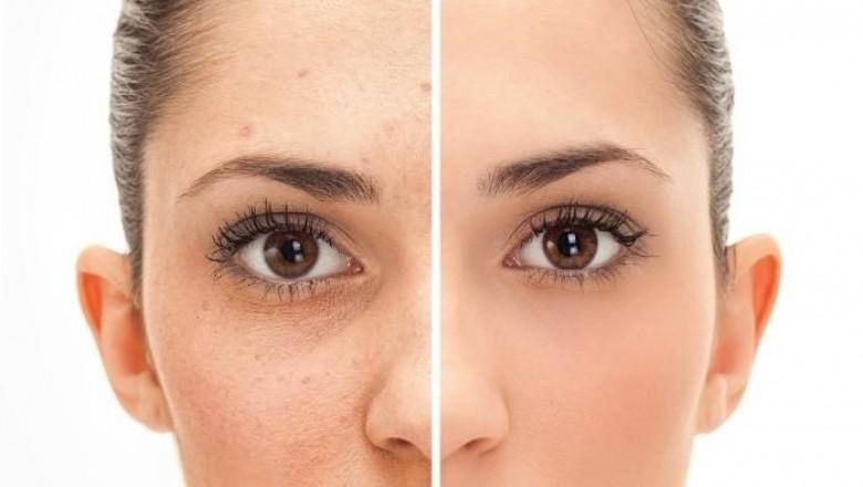 Карбоновый пилинг – глубокое очищение кожи