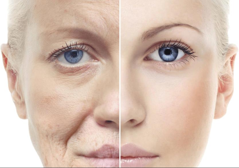 Эффективные средства анти-эйдж для кожи лица - лучшая косметика против старения