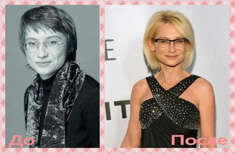 Эвелина Хромченко до и после