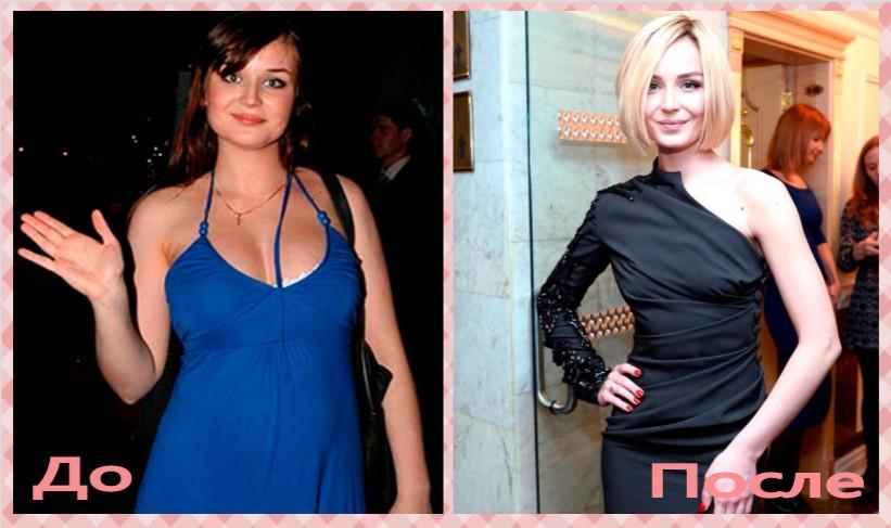 Полина Гагарина до и после