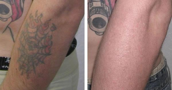 Кавер ап - удаление, или маскировка татуировки краской телесного цвета
