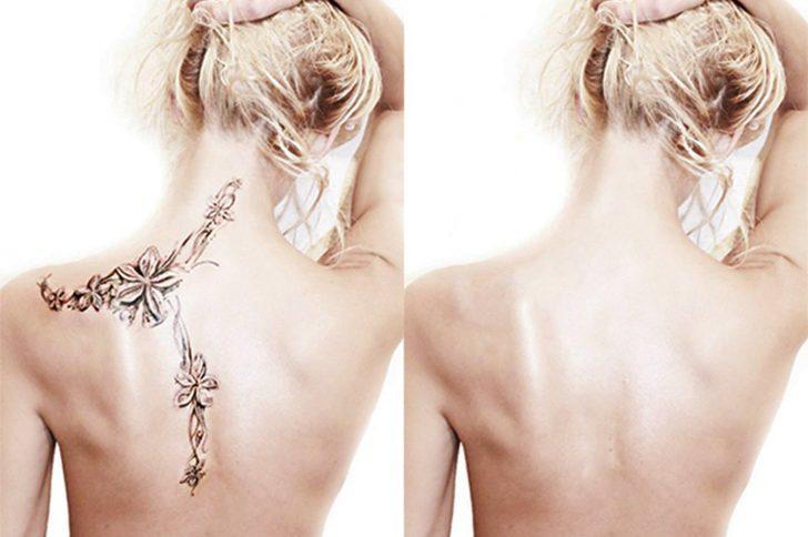 Удаление тату: 7 эффективных способов свести надоевшие татуировки