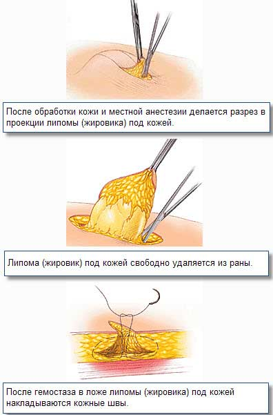 Хирургическое удаление большого жировика - липомы