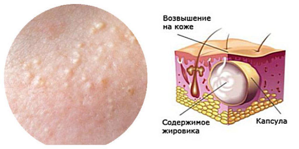 Жировик на лице - как он выглядит