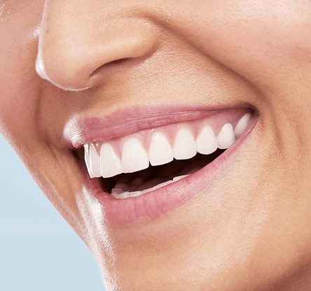 Красивая улыбка здоровых зубов