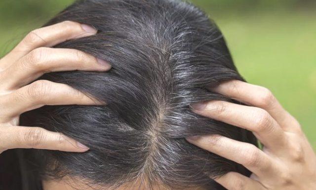 Поседение волос