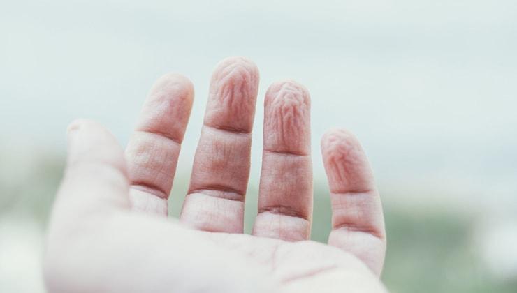 сморщенная кожа