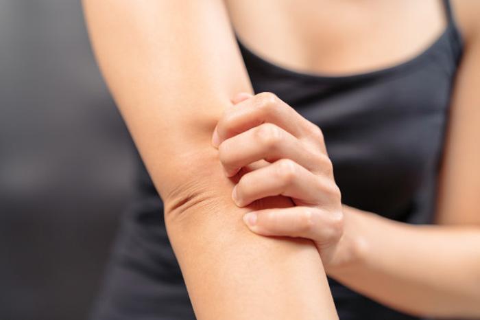 Профессор ответила на 12 главных вопросов об атопическом дерматите