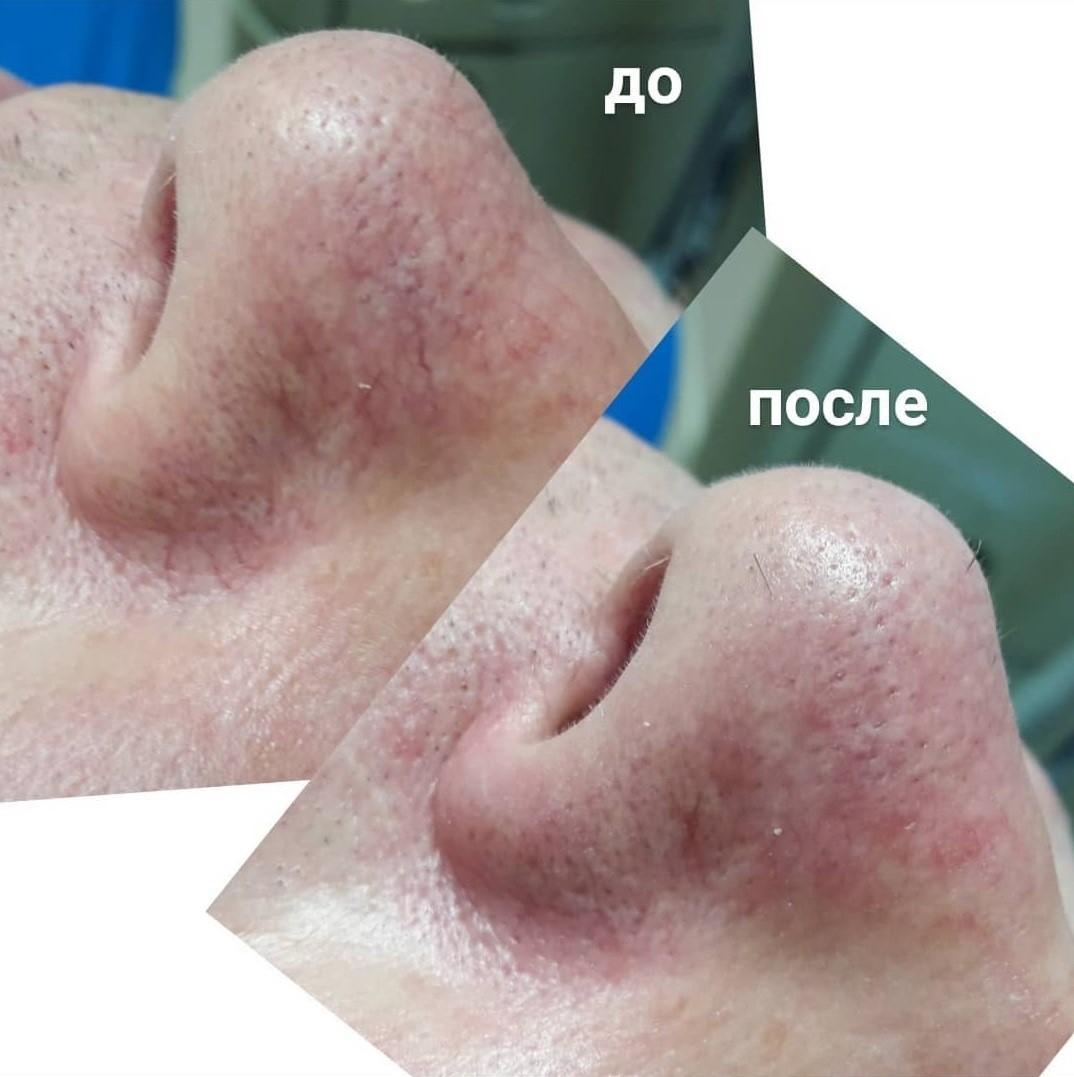 Фотоомоложение: эффект, показания и противопоказания, фото до и после процедуры